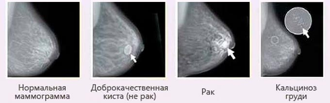 МРТ груди