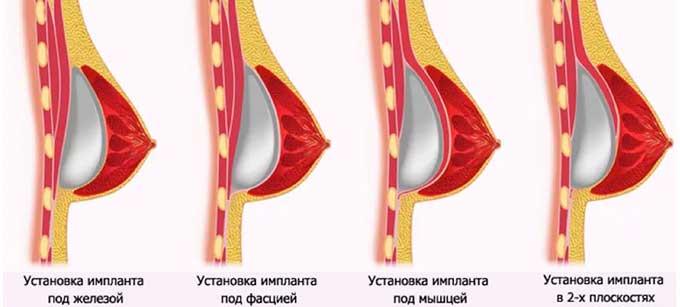 Варианты увеличения груди с помощью имплантов