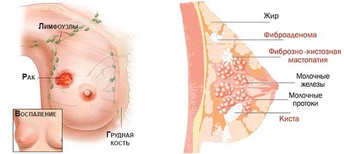 Мастопатия и рак молочной железы