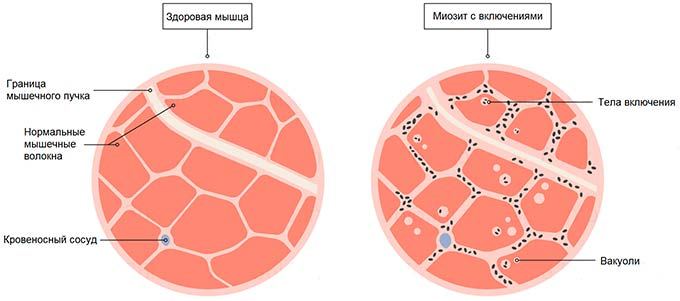 Симптомы при простуде груди thumbnail