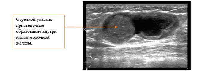 Пневмокистография кисты в молочной железе