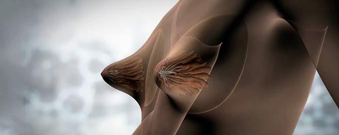 тубулярная грудь
