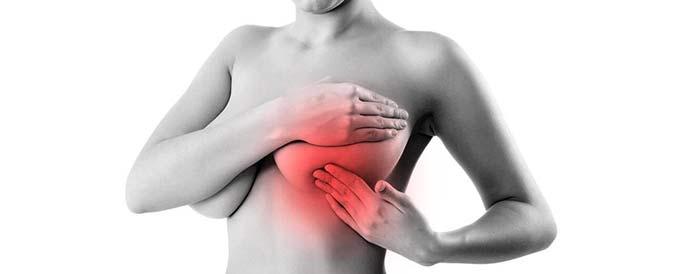 Застуженная молочная железа