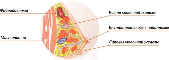 Виды образований в молочных железах