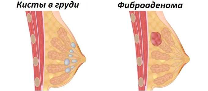 Кистозные образования в тканях груди