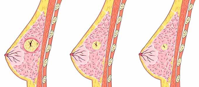 рост опухолевого образования в груди