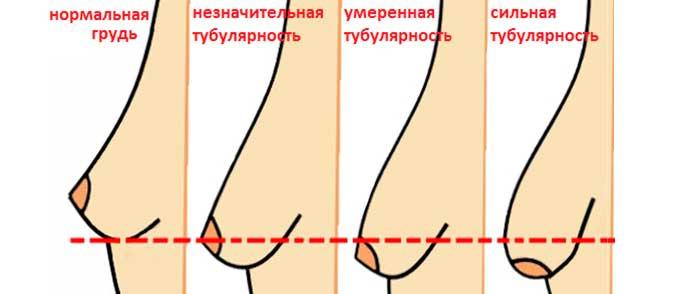 степени тубулярности груди