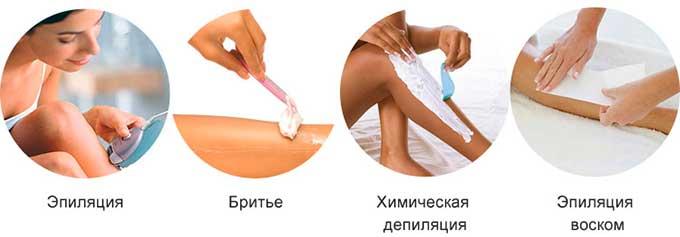 Способы удаления волос на теле