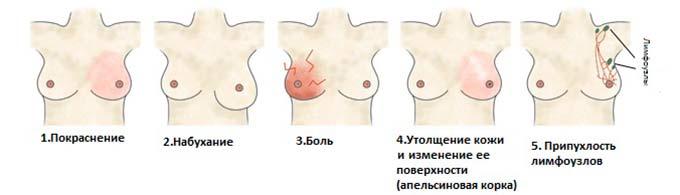 Симптомы протекания патологии в молочных железах
