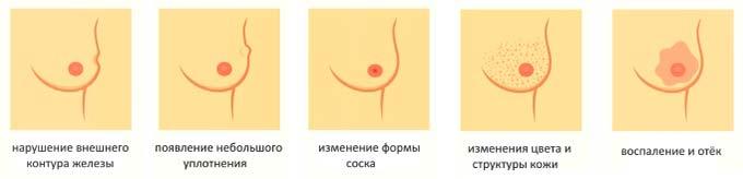 Симптомы патологий молочной железы