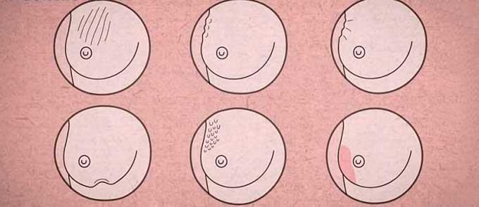 Изменения в молочной железе