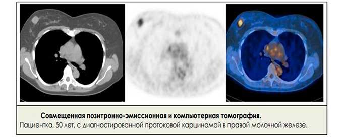 Результаты КТ груди