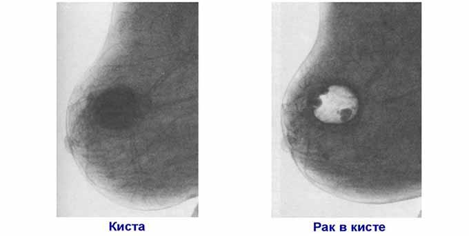 Киста и рак в кисте на пневмокистографии