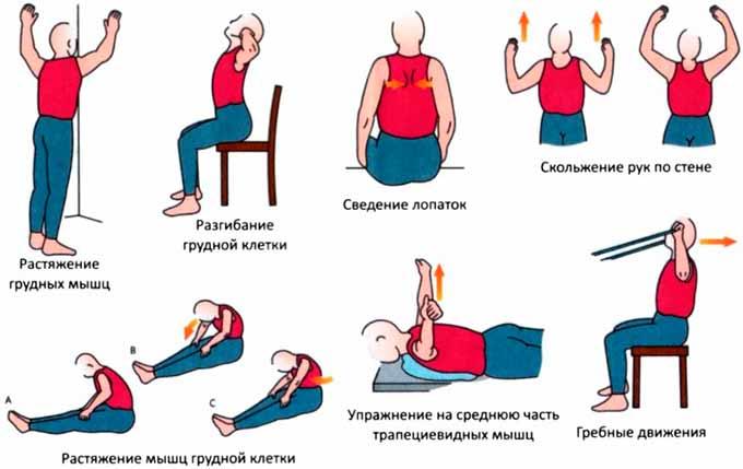 Упражнения при болях в спине при остеохондрозе