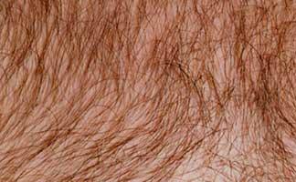 Чрезмерный рост волос