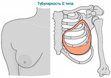 Тубулярность 2 типа