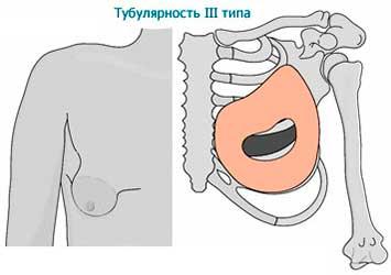 Тубулярность 3 типа