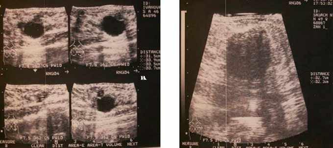 Образование в молочной железа на УЗИ снимке
