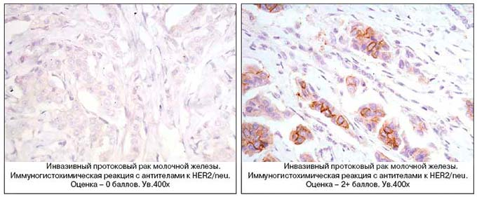 Выявление рака на ИГХ