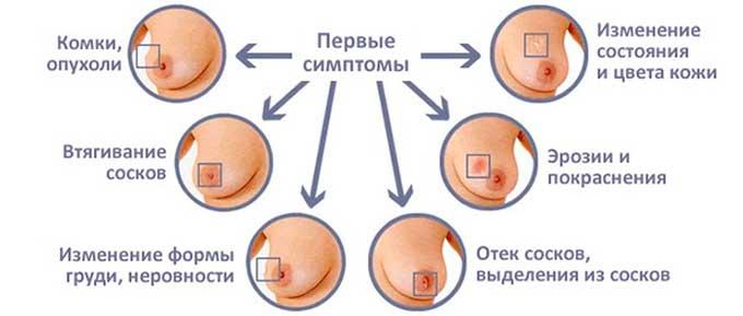 Симптомы нарушений в молочных железах