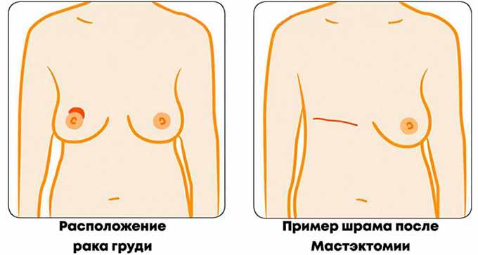 Шрам на груди после мастктомии