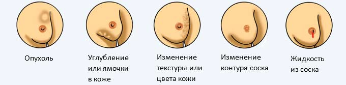 Симптомы заболеваний молочных желез