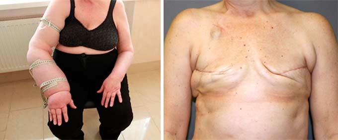 Рубцы и отек руки после мастэктомии
