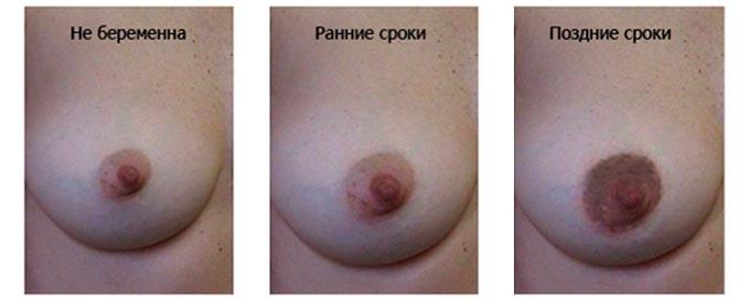 Изменение цвета соска при беременности