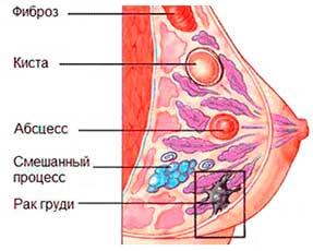 Новообразования молочных желез
