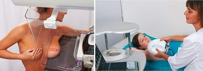 Классическая и электроимпедансная маммография