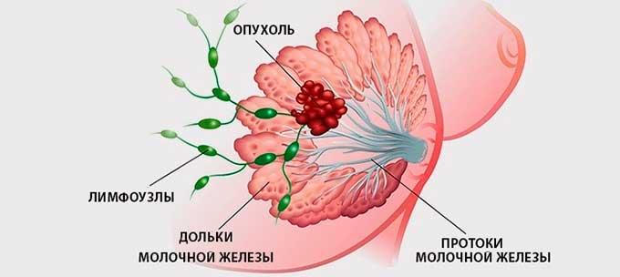 Опухоль в молочной железе