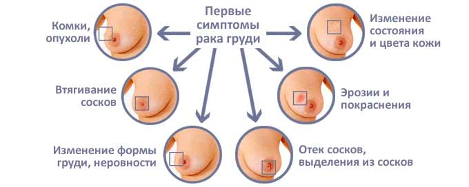 Симптомы онкологии груди
