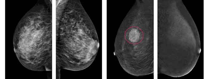 Маммографические снимки молочных желез