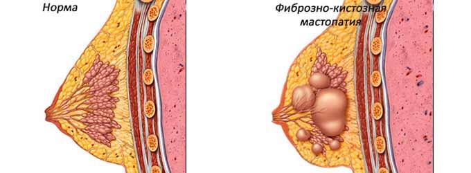 Мастопатия в молочной железе