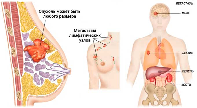 Распространение метастазов при раке молочной железы