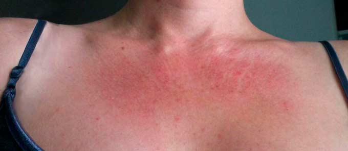 Аллергия на коже груди