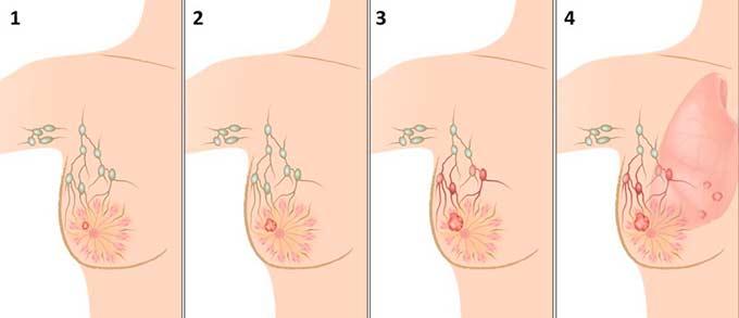 Стадии рака молочных желез