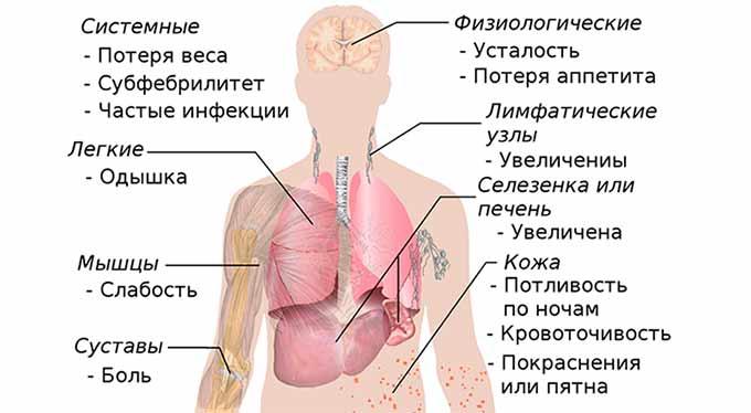 Симптомы распространения метастазов при раке