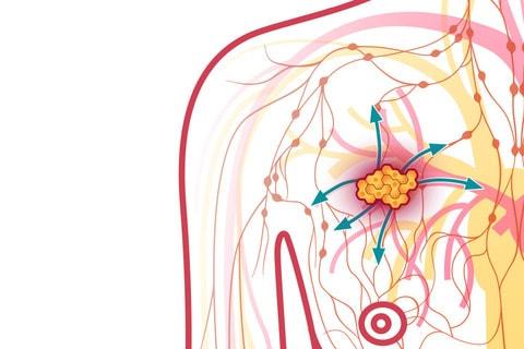 Метастазирование опухоли в груди