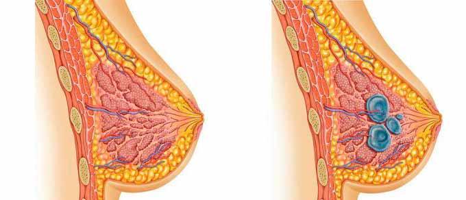 Развитие мастопатии в груди
