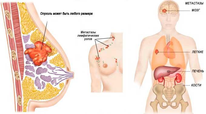 Рак груди с метастазами и большого размера