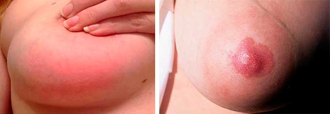 Симптомы проявления мастопатии