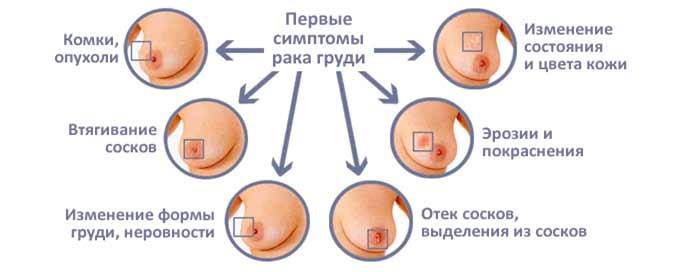 Первые симптомы рака молочных желез