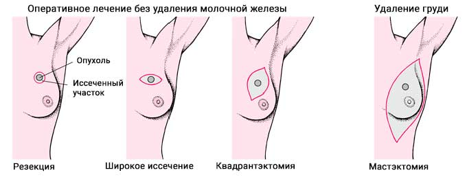 Виды операций по удалению опухоли в молочной железе