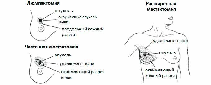 Лампэктомия м мастэктомия