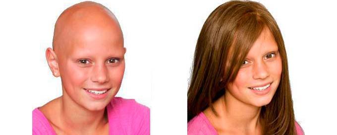 Потеря волос при раке груди