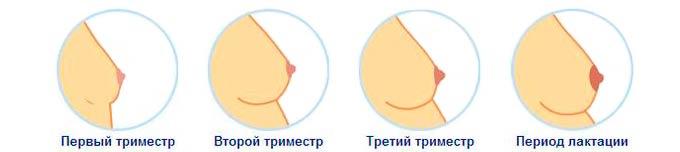 Грудь беременных