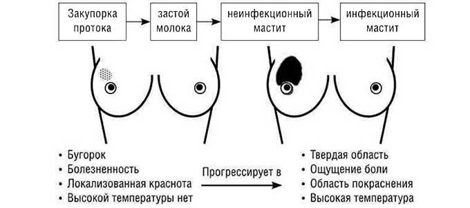 Осложнения лактостаза