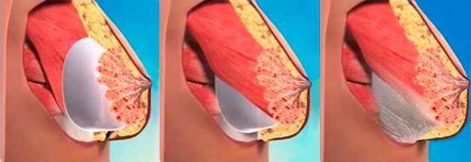 Смещение импланта в молочной железе