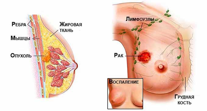 Последние стадии рака молочной железы